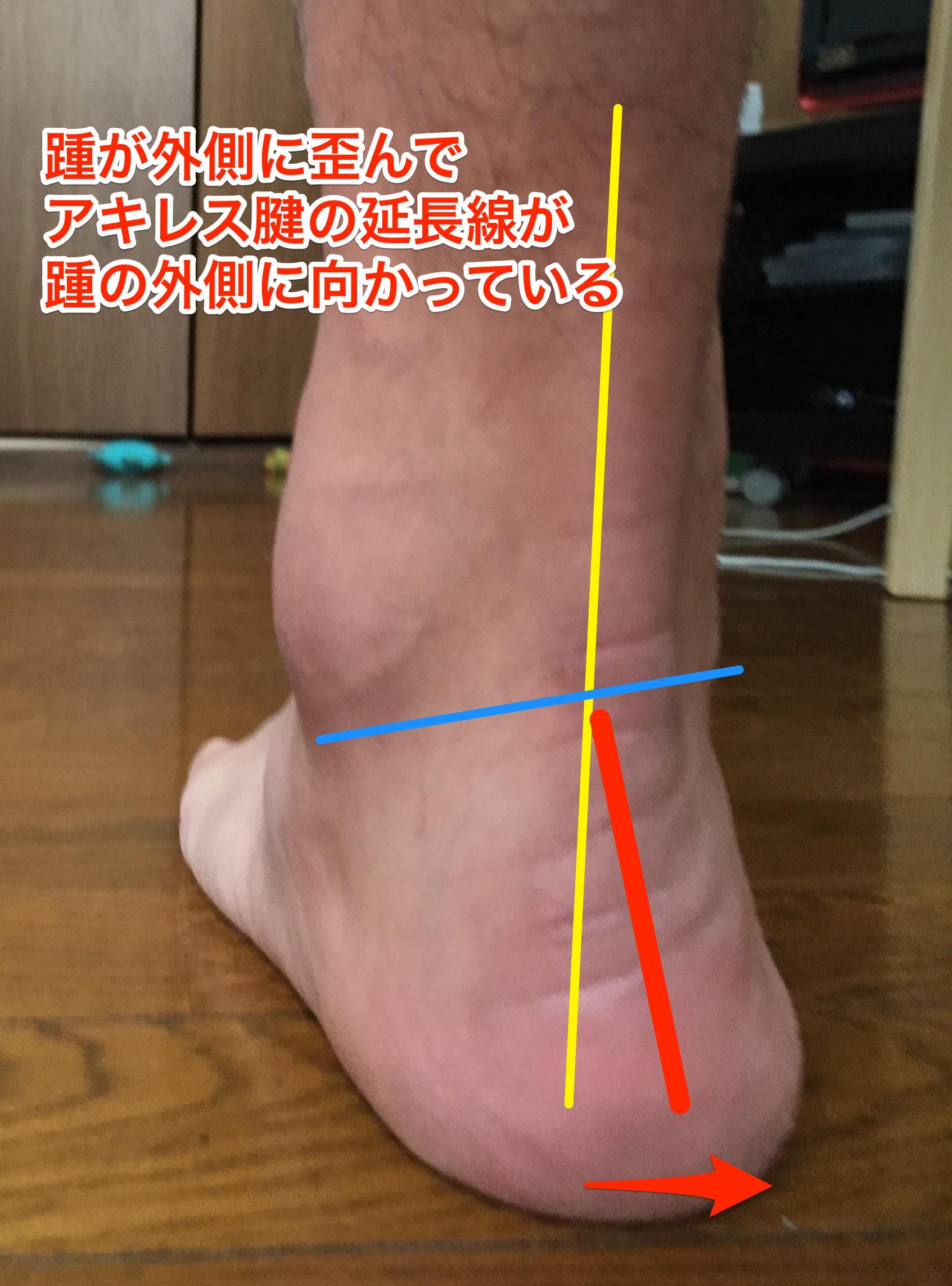 踵(かかと)が歪むと、身体の一番の土台が揺らぐ。
